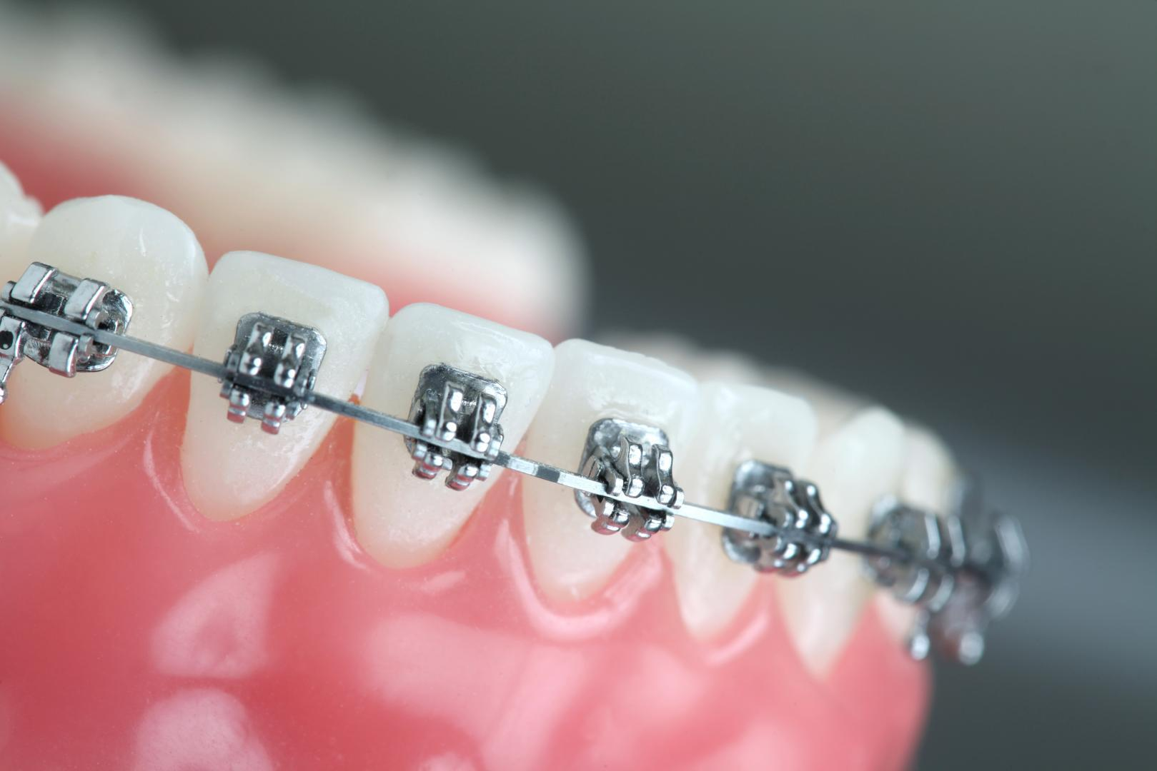orthodontiste.php